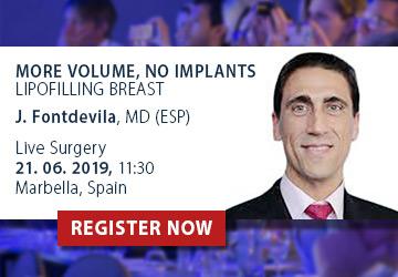 Dr Juan Fontdevila, Live Surgeon MIPSS 2019